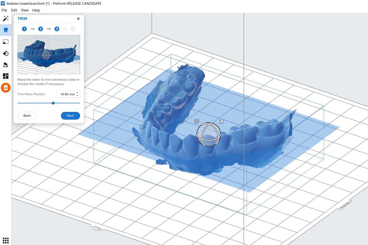 dental model trim - software
