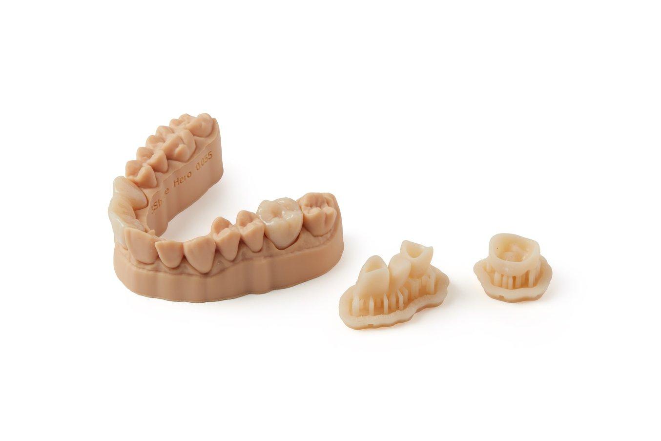 dental temporary crowns and bridges 3d printing