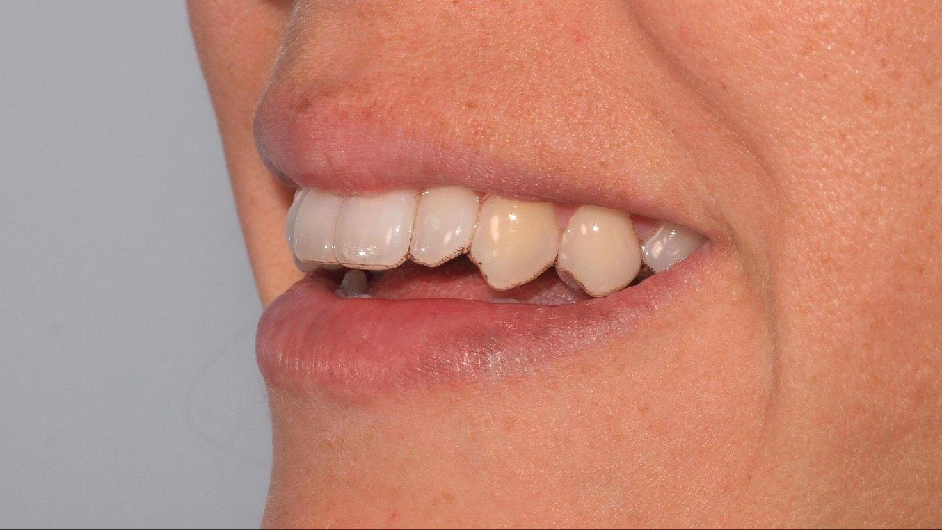 Un retainer termoformato su un modello ortodontico stampato usando la Draft Resin con le impostazioni a 200 micron.