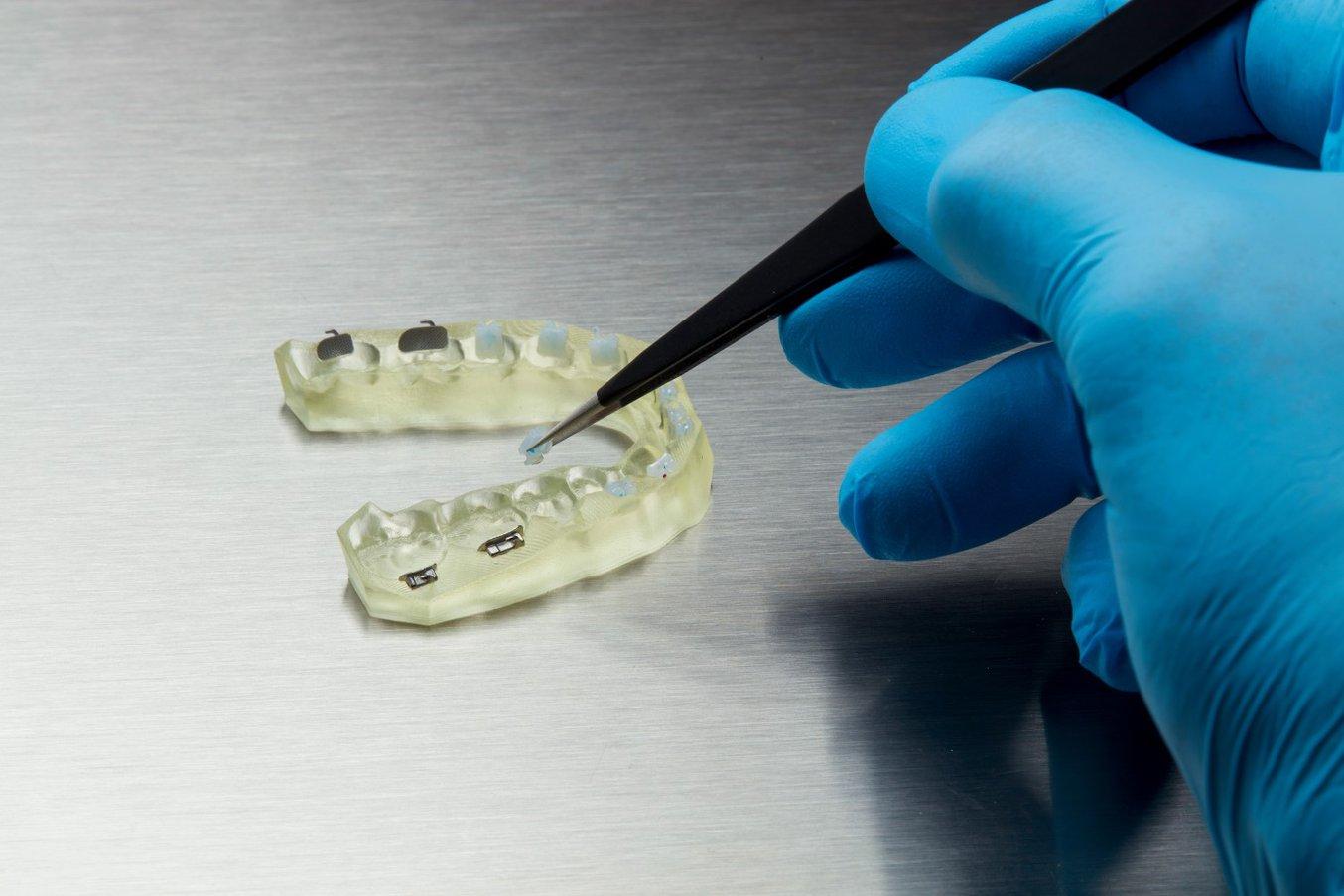 IBT Resin - Indirect Bonding Trays - 3D printing & Application