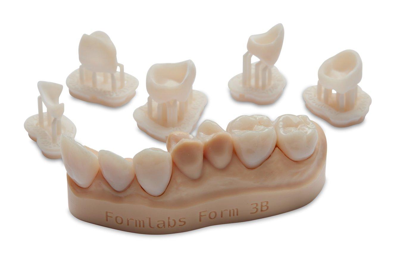 Single unit restorations 3D printed in Permanent Crown Resin.