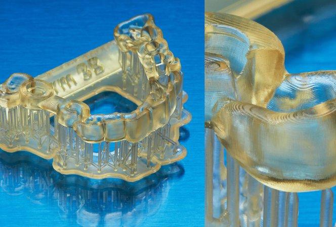 La nouvelle génération d'impression 3D dentaire