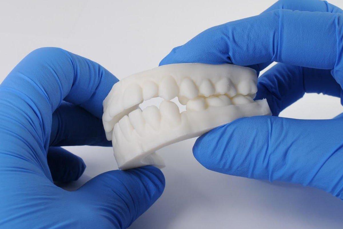 White Resin: Modelli bianchi estremamente lucidi per la presentazione ai pazienti