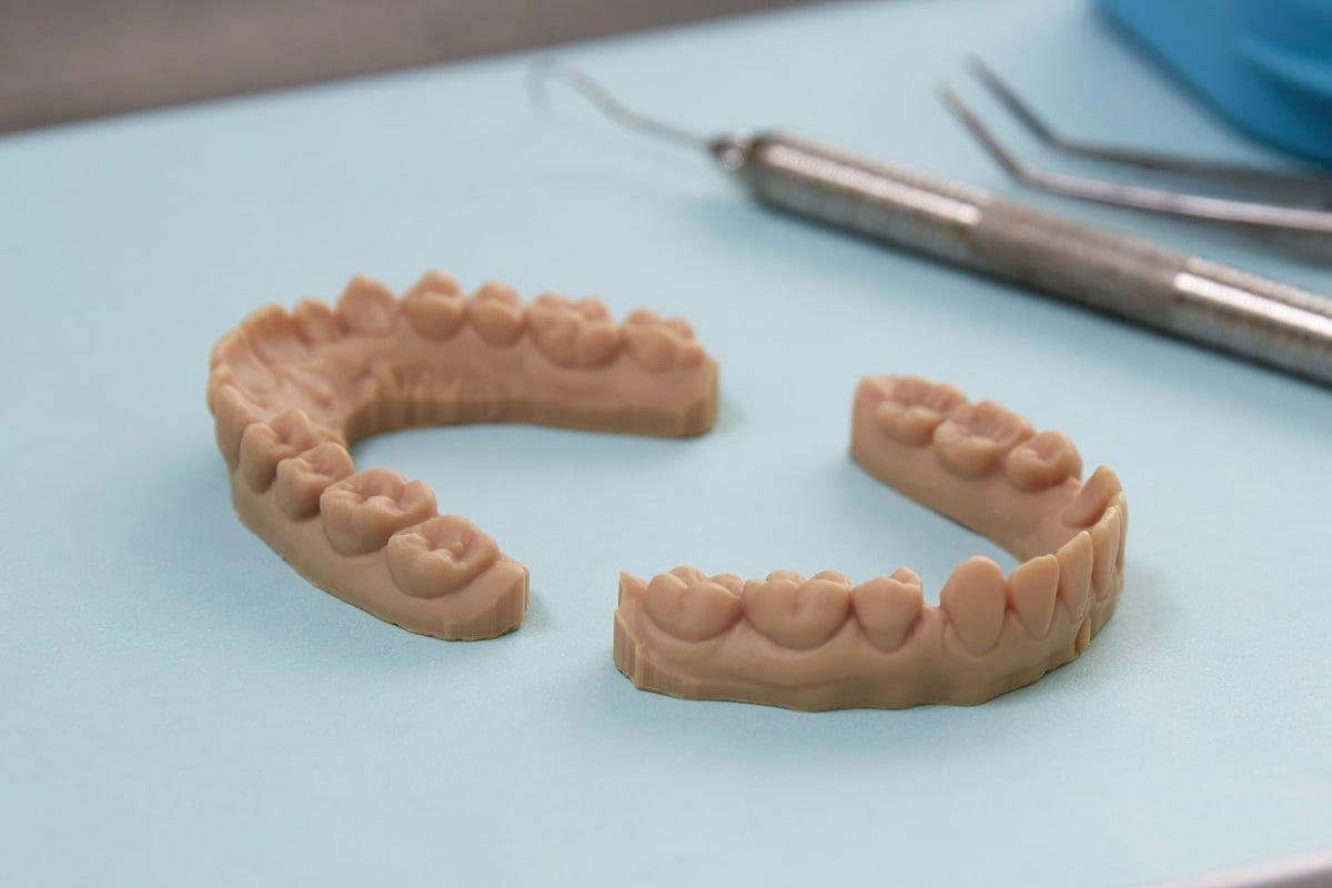 dental diagnostics model - 3d printed