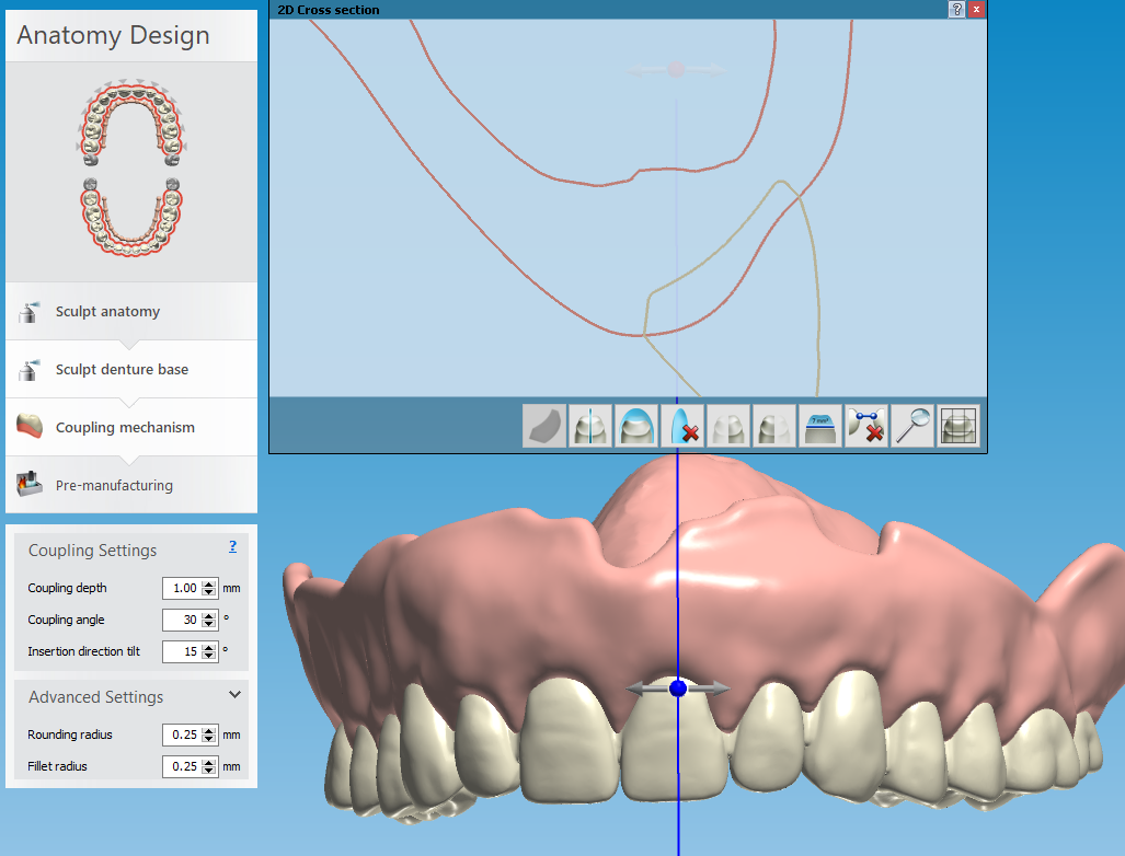 Critical thickness areas of a digital denture.