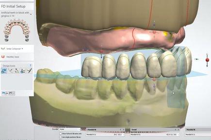 Dentures Design смола для 3D печати
