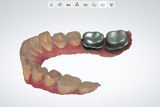 Castable Dental Design