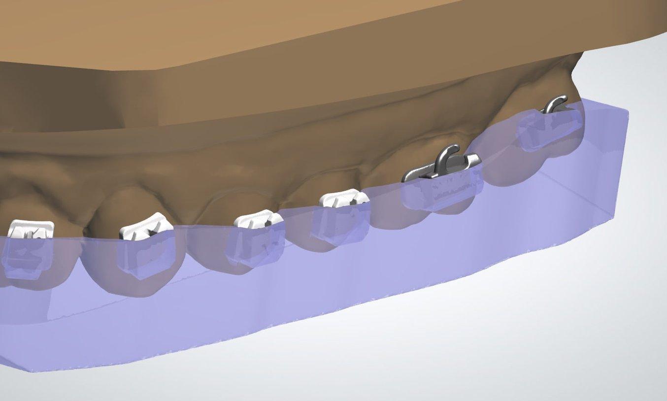 Esempio di copertura parziale (a metà o a tre quarti) dei contenitori dei bracket